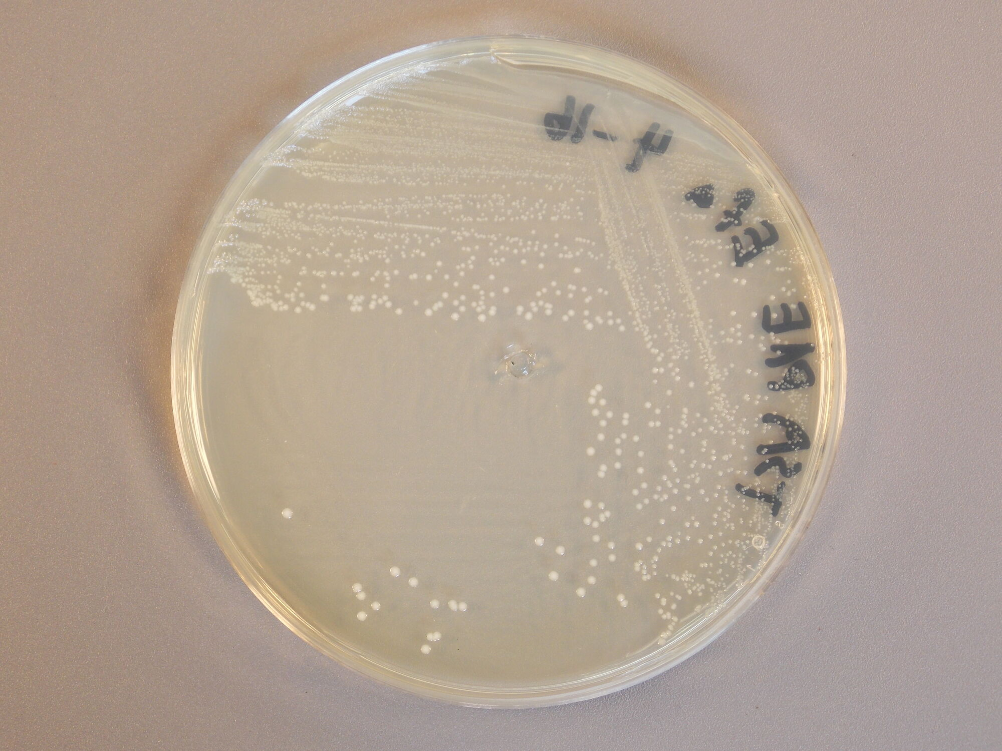 identifying unknown bacteria e faecalis The goal of this report is to identify two unknown bacteria using a series of tests while eliminating unlikely choices enterococcus faecalis mannitol(positive.