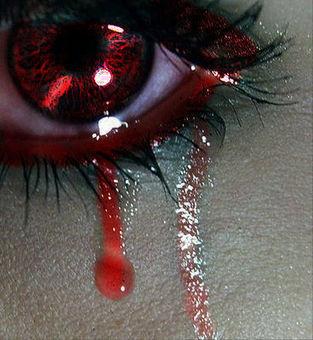 File:Blood in my eyes.jpg