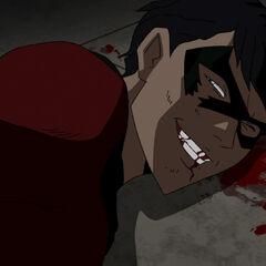 Jason after being beaten by the Joker.