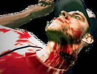 Dead rising tir employee bite mark
