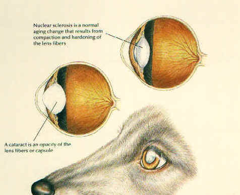 File:Cataracts nuclear sclerosis.PNG