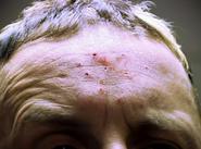 Pinhead injuries