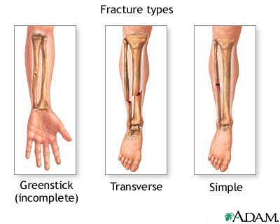 File:Fracture.jpg