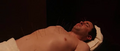 The acupuncture.png