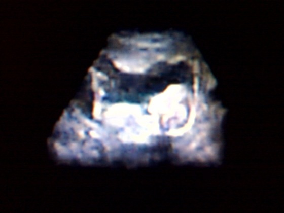 File:Ultrasound.jpg