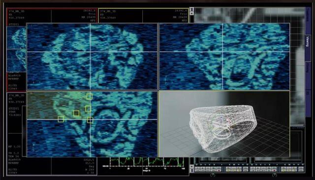 File:1x09 Suspect Zero's Ring.jpg