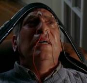 Electrodes brain
