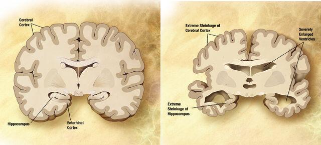 File:Alzheimer disease brain comparison.jpg