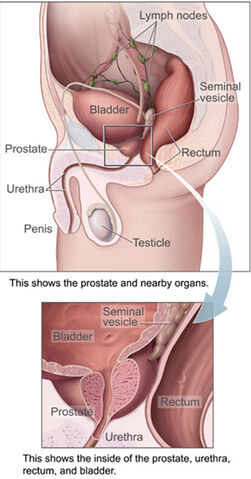 File:Prostatelead.jpg