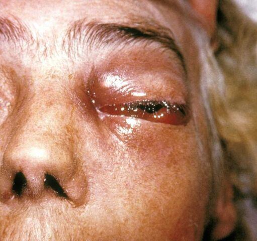 File:Periorbital fungal infection.jpg