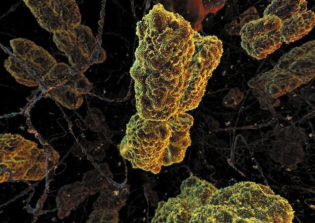File:Chromosome.jpg