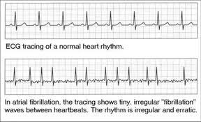 Arrhythmia Chart