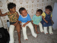 4 in casts