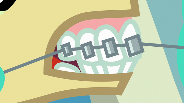 File:Carrot Crunch has braces put on S6E19.png