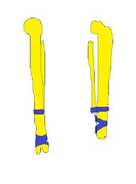 Vorian bones