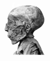 File:Seti II mummy head.png