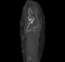 Mummy-upper-limbs