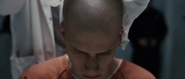 Lex Become Bald6