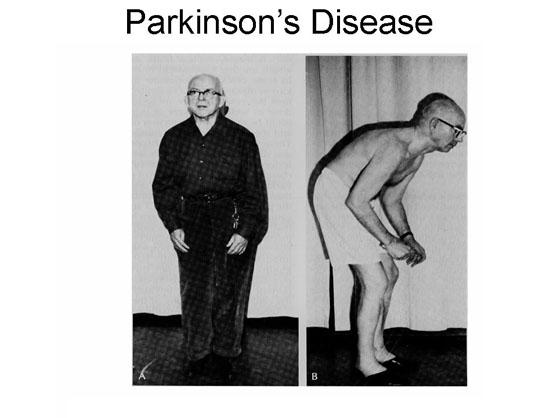 Slika:Parkinson d.jpg