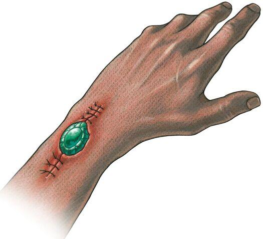 File:Implanted ioun stone.jpg
