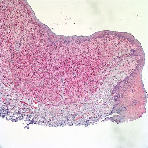 File:Factor XIIIa.13a.dermatofibroma.fibrous histiocytoma.jpg