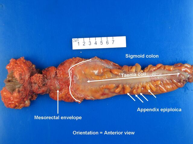 File:Rectum anterior view.jpg