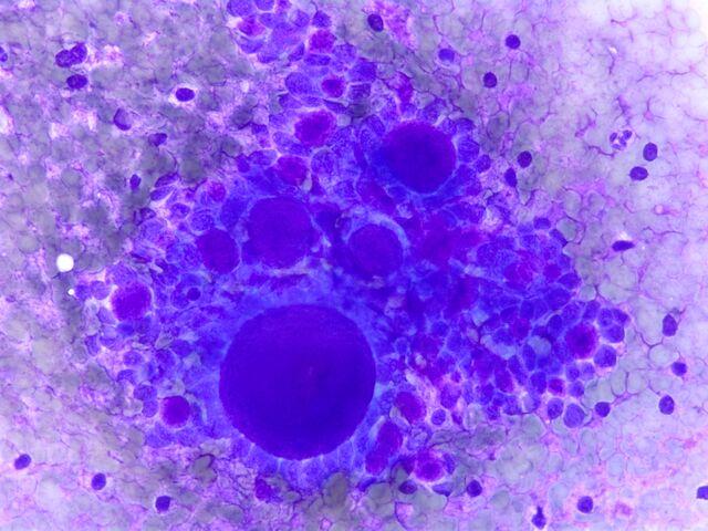 File:Adenoid Cystic Carcinoma1.jpg