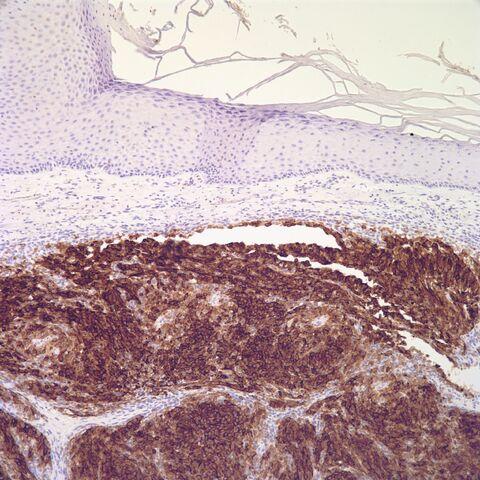File:HMB-45.melanoma.2.jpg