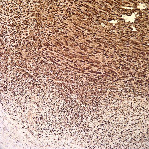 File:S100.desmoplastic neurotropic melanoma.4.jpg