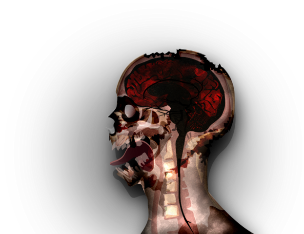 File:MRI stage07@2x.png