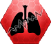 File:Stn Pulmonary Fibrosis.png