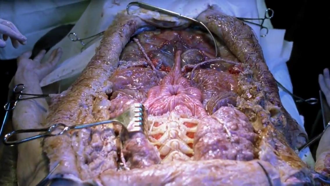 File:Reaper Autopsy.jpg