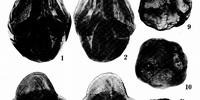 Droserapollis
