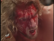 Royal Rumble 2000 HHH-face-after-barbed-wire