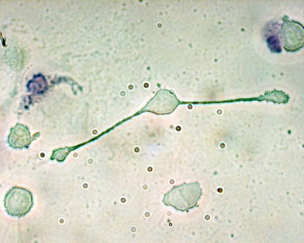 File:Macrophage.jpg