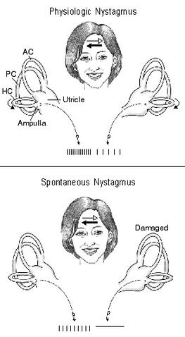 File:Balance Disorder Illustration C.png