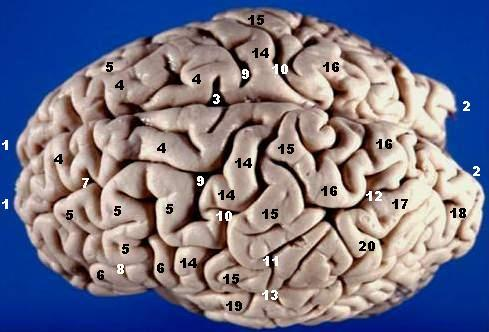 File:Human brain superior-lateral view description.JPG