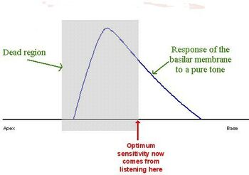 Basilar membrane 2B