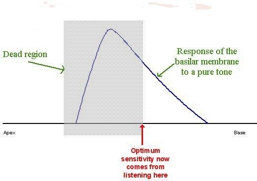 File:Basilar membrane 2B.jpg