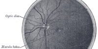Optic disc