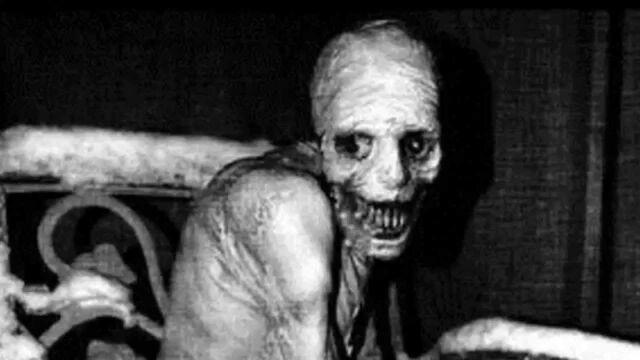 Datei:Skelett Russisches Schlafexperiment.jpg