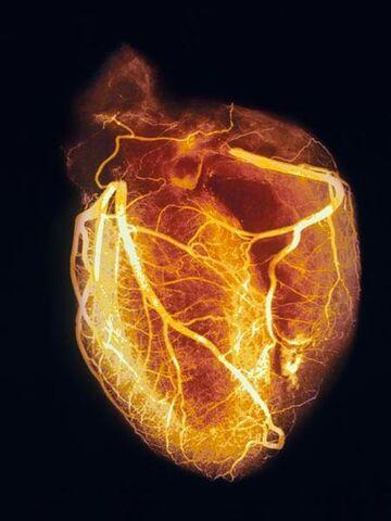 File:Heart-angiogram 986 600x450.jpg
