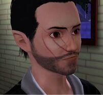 Walter Vice(scar)