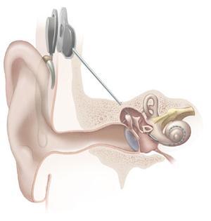 File:Cochlear Implants.jpg