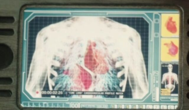 File:Binary vascular system.jpg