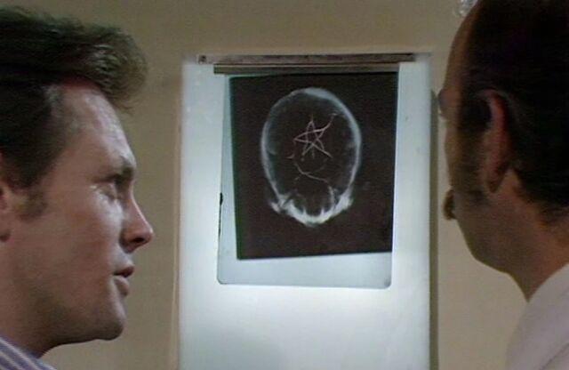 File:X-ray Eustace.jpg
