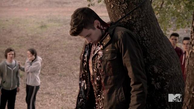 Datei:Teen Wolf Season 3 Episod 4 Unleashed Jesy McKinney Kyle Dead .png
