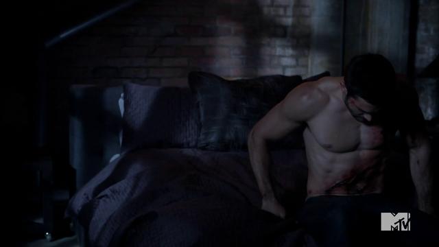 File:Teen Wolf Season 3 Episode 6 Motel California Tyler Hoechlin Derek's Injuries.png