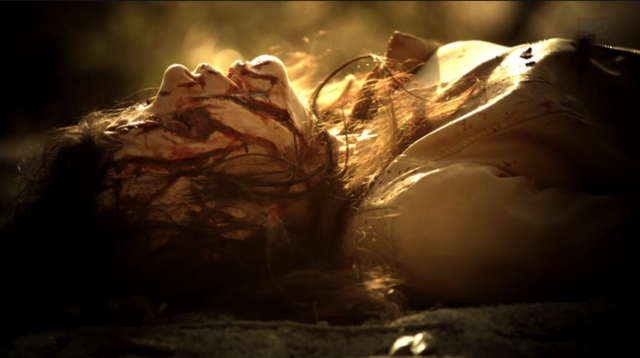 File:Teen Wolf Season 3 Episode 10 The Overlooked Jennifer clawed up by Kali.png