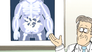 S6E26.024 Sensai's Exploded Stomach